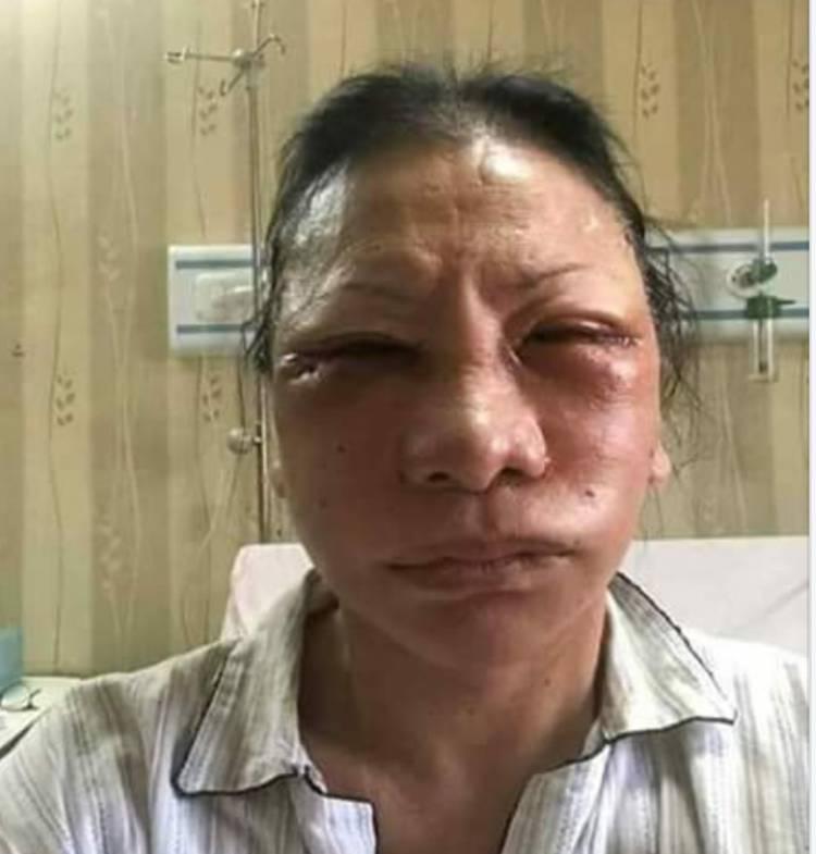 Ratna Sarumpaet Disoal, Polda Jabar Telusuri Jejak Penganiayaan di Bandung