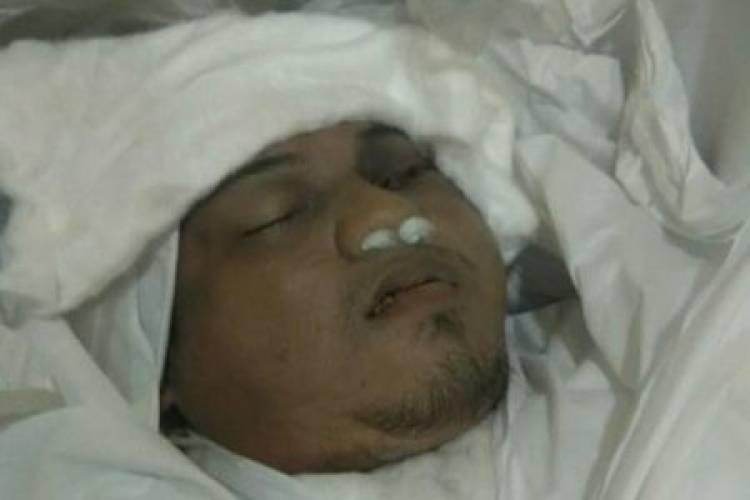Tragis, Kondisi Jenazah Enam Laskar FPI : Bekas Tembakan Tak Hanya Satu Peluru